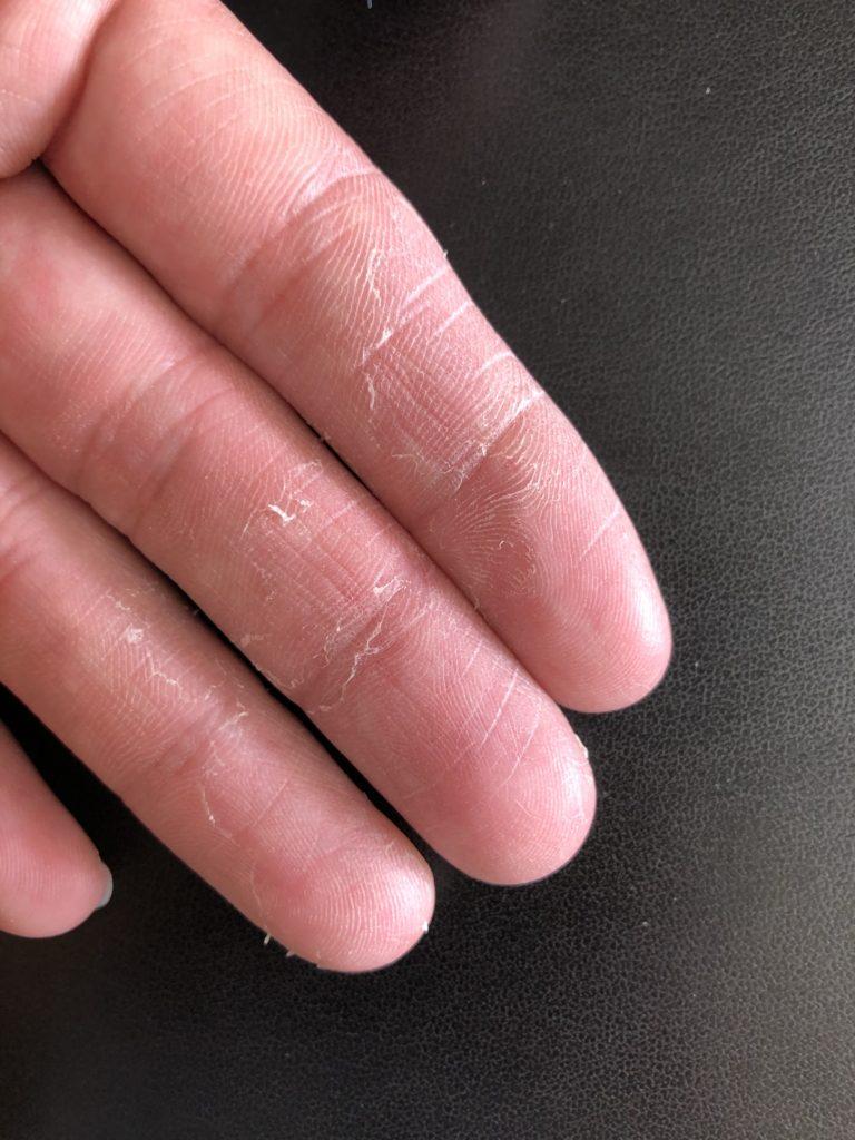 の むける 皮 が 病気 指 の 手
